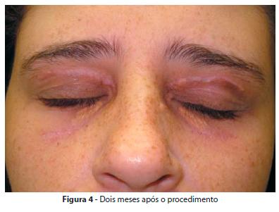 Fotos de erros da cirurgia plastica 34