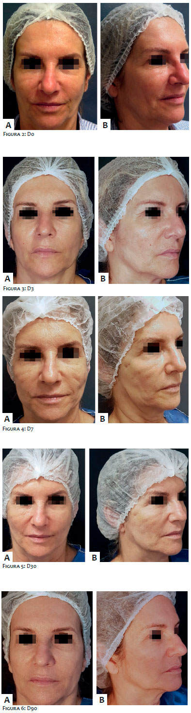 Surgical And Cosmetic Dermatology - Sutura com cones absorvíveis