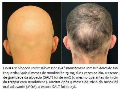 Helmint diagnosztikai orvostudomány Helmint terápia Crohn, Helmint terápia alopecia