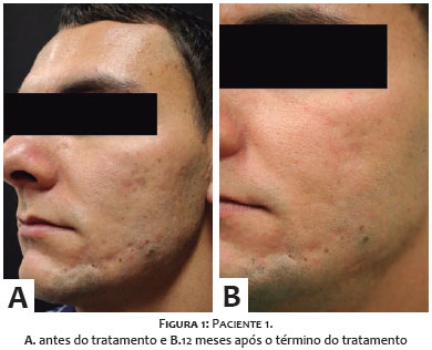 Surgical And Cosmetic Dermatology - Tratamento das