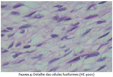 Estudo imunohistoquímico da expressão da proteína p53 em carcinoma da mama 10