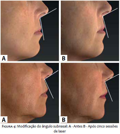 Surgical And Cosmetic Dermatology Efeito Do Laser N 227 O