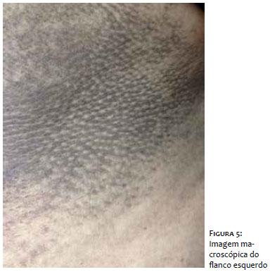 Liquen plano reticular caso clinico